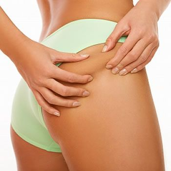 How to Reduce Cellulite Naturally Without Expensive Products