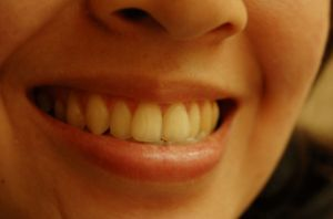 teeth-634065-m