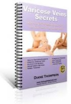 Varicose Veins Secrets Review