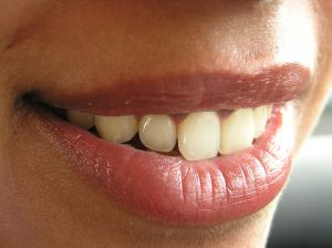 Teeth Whitening for Smokers - How to Whiten Nicotine Stains on Teeth