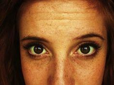 Getting Rid Of Deep Forehead Wrinkles