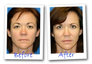 before after upper eyelid lift