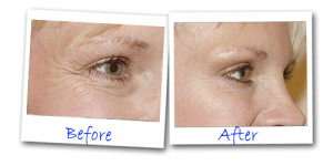 before and after eye bag tightener