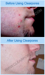before and after clearpores